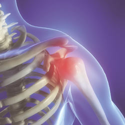 Shoulder Pain, Shoulder pains, shoulders pain, shoulders pains, shoulder injury, shoulder injuries, injured shoulder, shoulder specialist, shoulder pain specialist, shoulder pain singapore, shoulder problem, shoulder sore