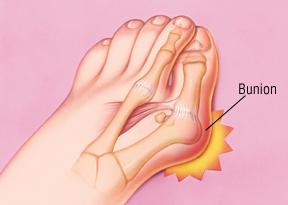 Bunion, Hallux Valgus, Bunion Specialist, Foot Specialist, great toe pain, great toe swelling, toe pain, toe injury, redness big toe, big toe, sore great toe, bunionectomy