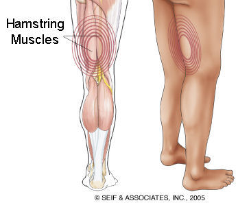 Hamstring Tendonitis, Hamstring Injury, Back Muscle leg injury, leg pain, hamstring tendon injury, hamstring muscle injury, leg muscle injury, hamstring strain, pulled hamstring, hamstring specialist