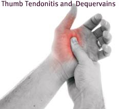 Thumb Tendonitis, DeQuervain's Tendonitis, Thumb tendon injury, wrist tendonitis, thumb and wrist pain, thumb pain, wrist pain, mommy's wrist, mommy thumb, mommy wrist pain, mom's wrist, thumb specialist, hand pain, hand specialist