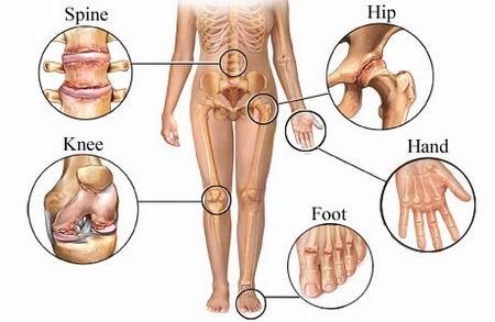 Osteoarthritis knee, osteoarthritis hand, osteoarthritis heel, osteoarthritis neck, osteoarthritis hip, osteoarthritis ankle, osteoarthritis specialist, knee specialist, shoulder specialist, best knee specialist singapore, Dr Kevin Yip
