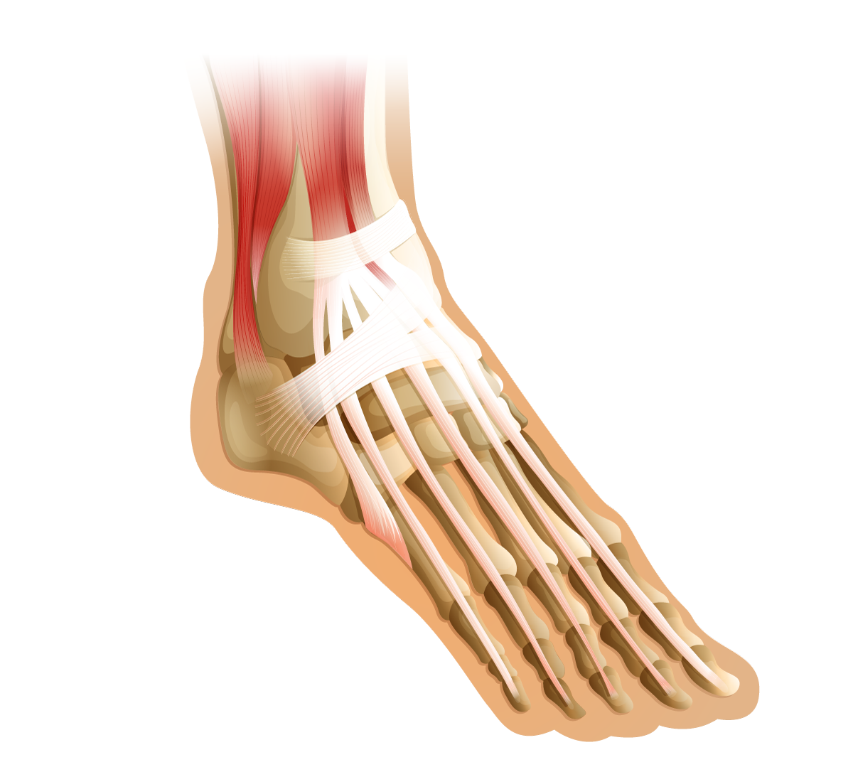 Foot Tendon Injury, Achilles Tendonitis, Peroneal Tendon Injury, Posterior Tibial Tendon Injury. Foot Specialist, foot pain, foot swelling, foot injury