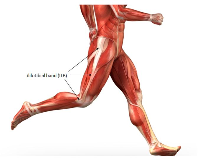 Iliotibial Band Syndrome, IT Band Syndrome, Runner's knee, knee injury, ITB, knee sports injury, knee pain, knee sports pain, knee pain after exercise, sports clinic singapore, knee specialist singapore, knee pain in runners, athlete knee injury,