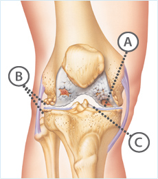 Osteoarthritis Knee, knee specialist, knee wear and tear, knee specialist singapore