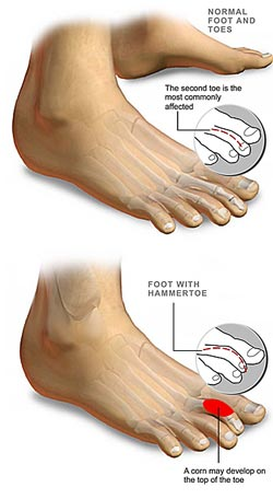 Hammer toe, mallet toe, toe deformity, foot specialist singapore, foot deformity, Treatment For Hammer Toe,  hammer toe singapore, surgery for hammer toe, hammer toe symptom, hammer toe causesX hammer toe treatmentX hammer toe specialist, claw toe, toe pain, foot pain, foot injury, toe injury