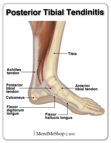 Posterior Tibial Tendon Injury, Posterior Tibial Tendonitis, foot injury, foot pain, foot specialist, posterior tibial pain, foot swelling