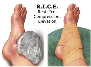 Sprains First Aid, immediate treatment for sprain, treatment for acute injury, RICE
