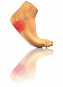 Heel Spurs Syndrome Singapore