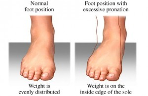 Pronation and Effects, pronation specialist singapore, pronation singapore, treatment pronation, children pronation