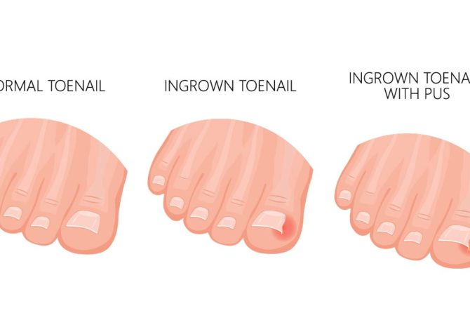 Ingrown Toenail Specialist Singapore