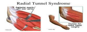 Radial Tunnel Syndrome Surgery Singapore