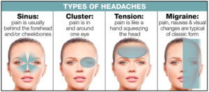 Causes of Headache