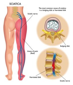Leg pain and numbness treatment