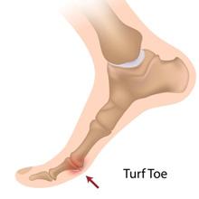 Turf Toe Treatment Singapore