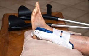Ankle Fracture Treatment Singapore