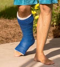 Fibreglass cast for foot fracture