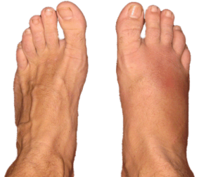 Foot Fracture Specialist Clinic