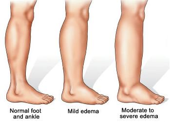 Swollen Legs in Elderly