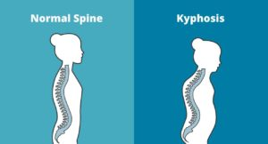 Kyphosis Specialist Clinic