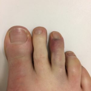 Toe Fracture Specialist Clinic