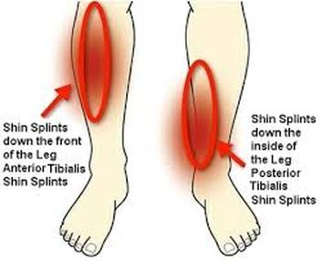 Shin Splint – Front Lower Leg Pain