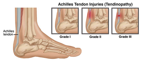 Achilles Tendon Injury Specialist Clinic