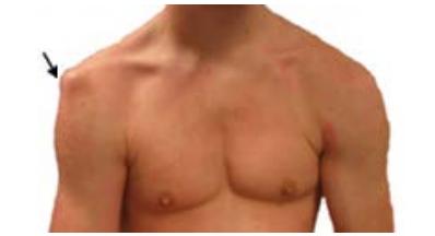Shoulder Dislocation Specialist Clinic