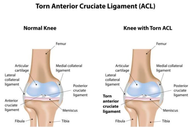 ACL injury Specialist Clinic