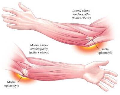 Elbow Muscle Injury – Tennis Elbow