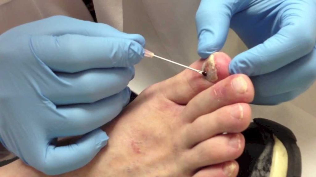 Blood under Nail Treatment - nail trephination