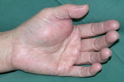 Swollen Hand Specialist Clinic
