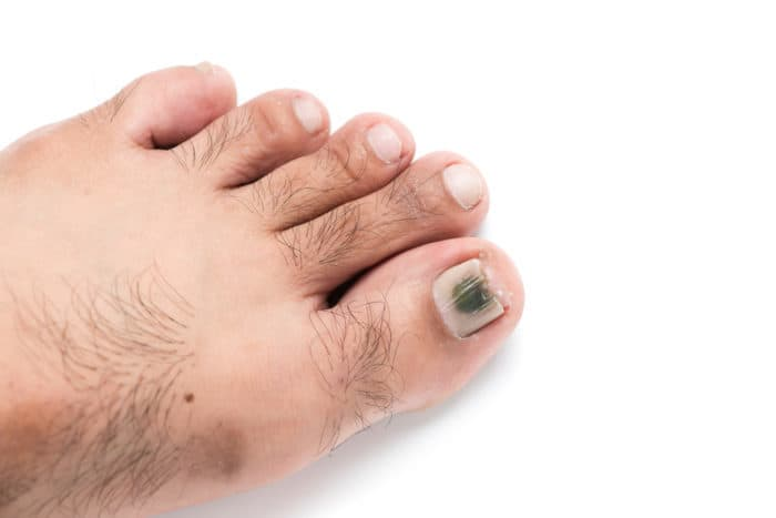 Blood under toenail specialist clinic