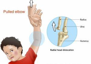 Children Dislocation Specialist Clinic