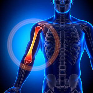 Upper Arm Pain Specialist Clinic