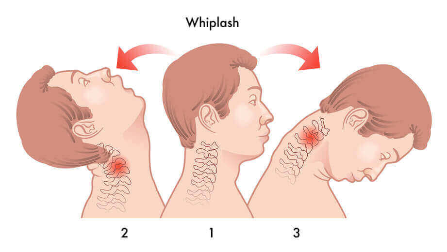 Whiplash Injury Specialist