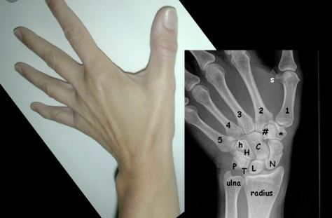 Wrist-Dislocation-Specialist-Clinic