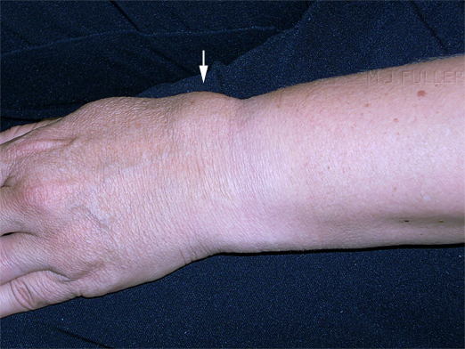 Wrist Fracture Pain and swelling