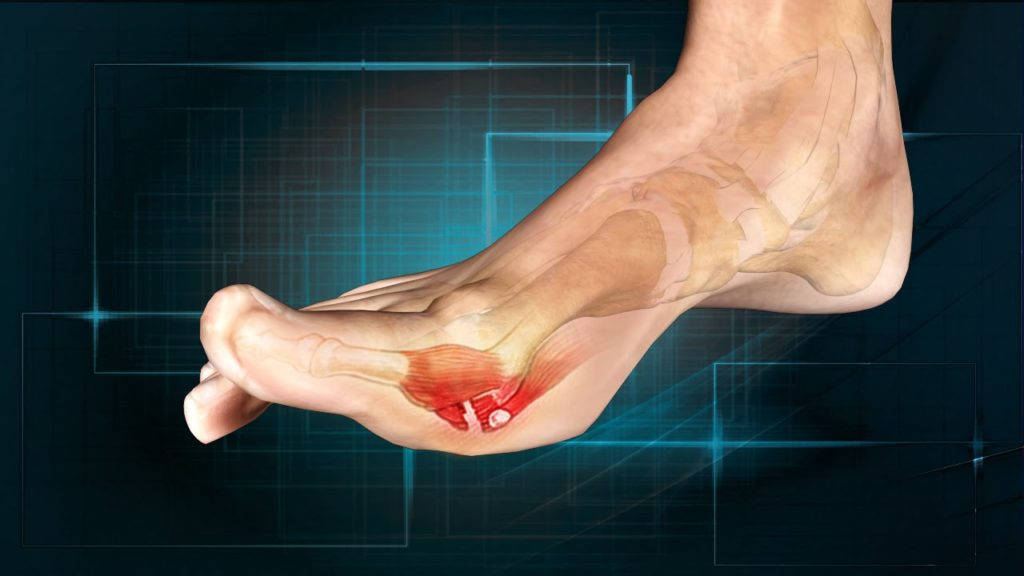 Turf Toe Specialist Clinic