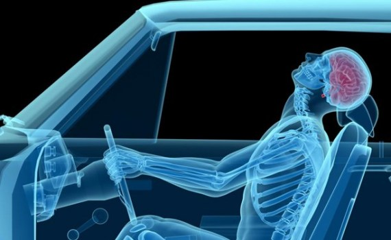 Whiplash Injury Specialist for road traffic accident
