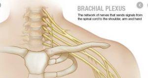 Brachial Plexus Injury Specialist