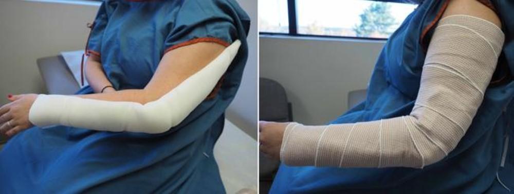 Elbow Fracture Cast Treatment