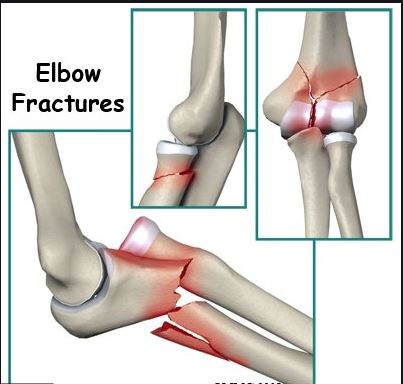 Elbow-Fracture-Specialist-Clinic