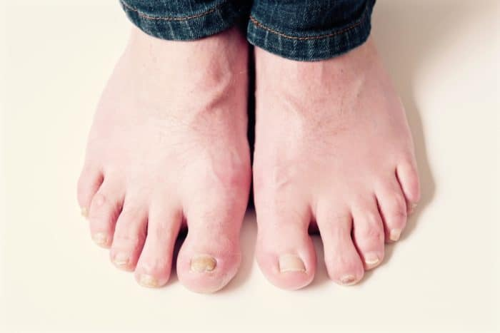 Fungal Toenail Infection Specialist