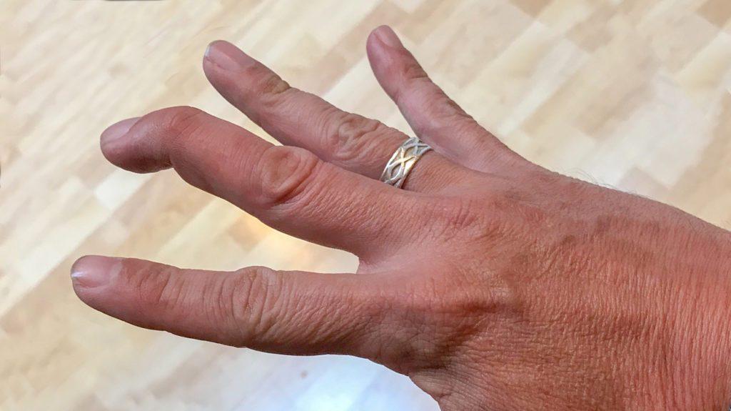Mallet Finger Specialist Clinic
