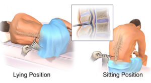 Epidural Injection for Back Pain
