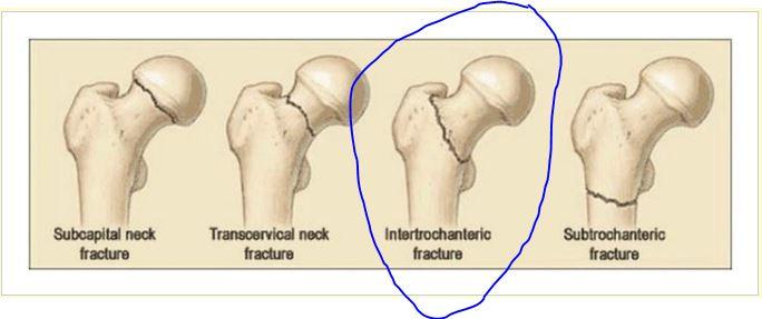 intertrochanteric fracture specialist singapore