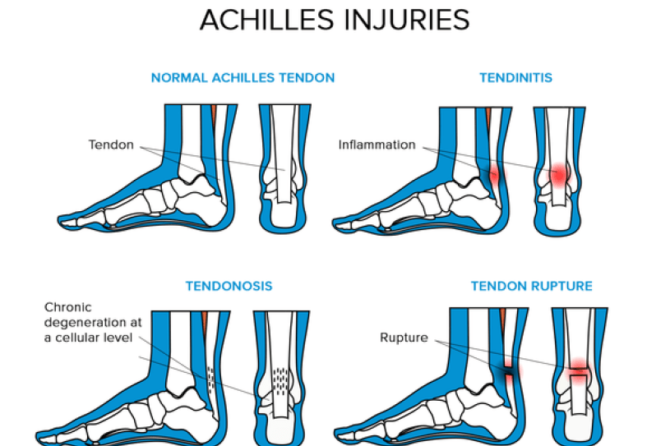Achilles Tendonitis: Causes of Foot Pain That Cannot Walk