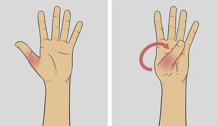 Thumb Fracture Deformity
