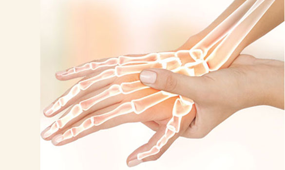 Carpal Tunnel Syndrome Treatment Specialist