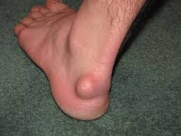 Ankle Lump Ganglion Cyst